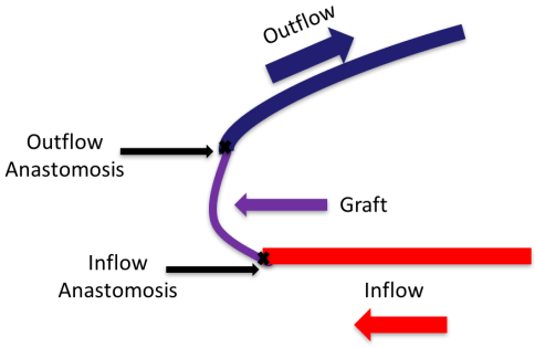 Arteriovenous graft (AVG)