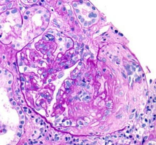 Fibrocellular-Crescent-Formation-and-Interstitial-Inflammation-in-Lupus-Nephritis-on-PAS.jpg