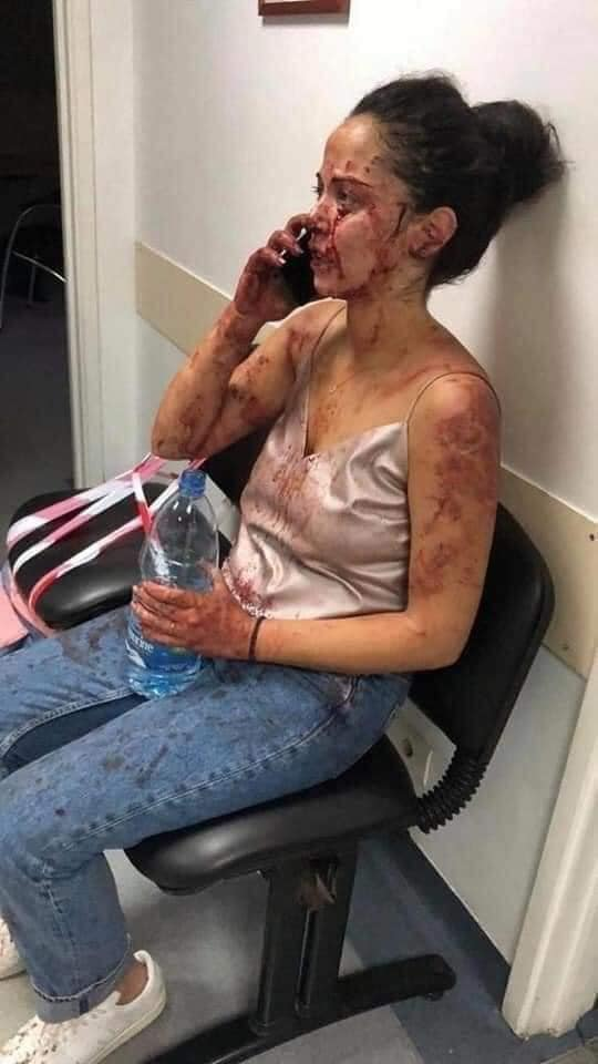 Wounded girl in hospital