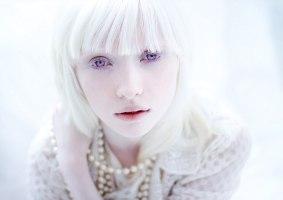 Nastya Zhidkova é a albina mais linda do mundo