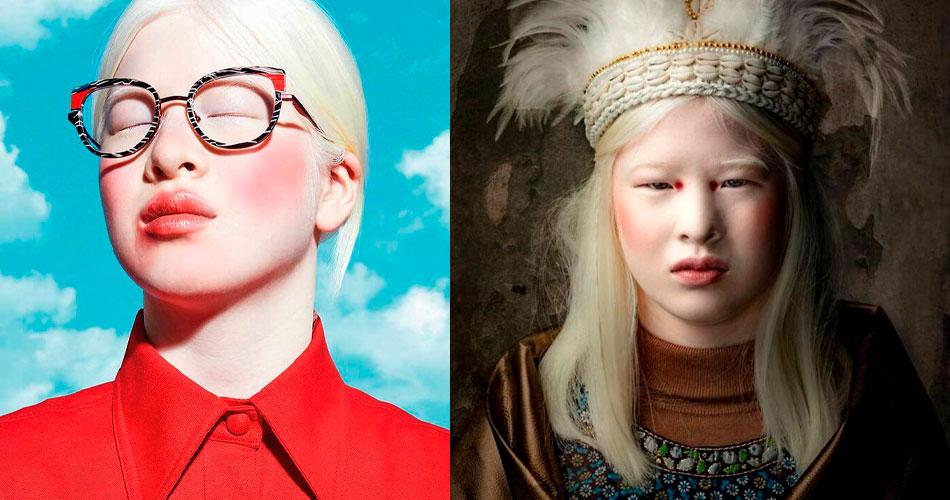 A modelo albina da Vogue que foi abandonada quando bebê
