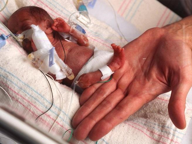 Нарушение центральной нервной системы у ребенка. Перинатальное поражение цнс у новорожденных