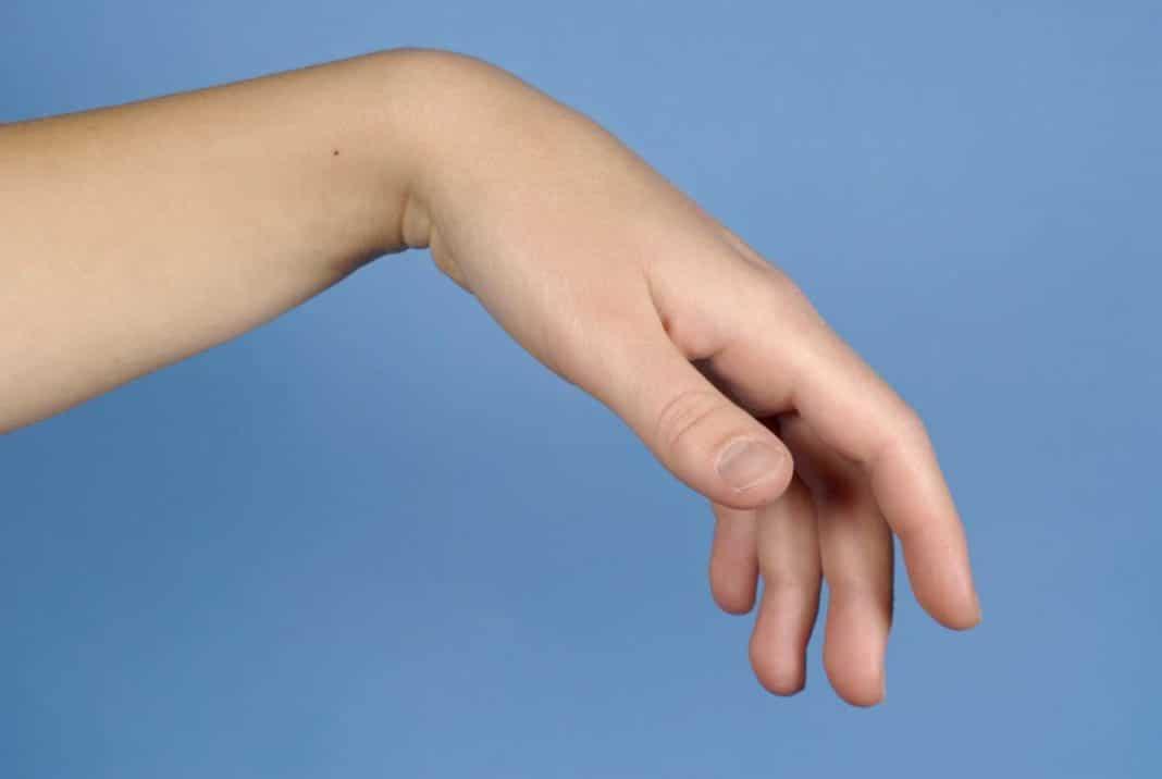 Törje meg a kezének ujjának falát. Zárt intraartikuláris törések