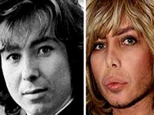 Фото Сергея Зверева до и после операции