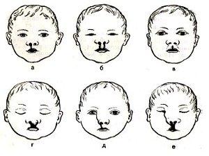Виды заячьей губы