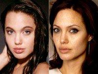 анджелина джоли до и после операции