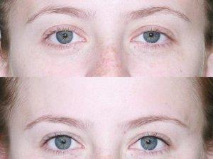 До и после татуажа межресничного пространства глаз