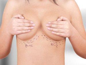 помогает ли йод для увеличения груди