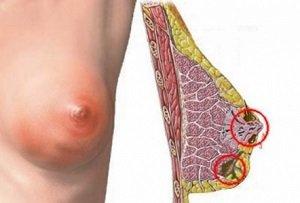 Противопоказания при мастопатии молочной железы