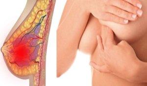 Мастопатия: симптомы, лечение