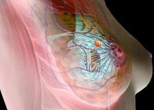 Кистозная мастопатия молочных желез: что это такое?
