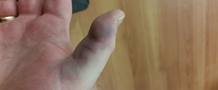 waiting in a and e - my broken thumb