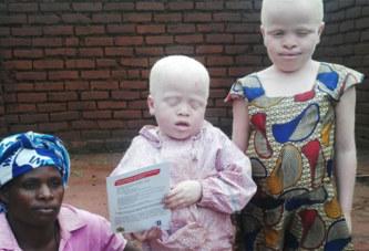 Une femme albinos malawite assassinée pour ses os