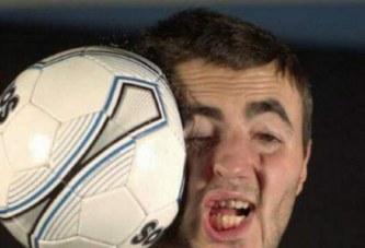 Un ballon reçu en plein visage lui sauve la vie