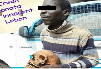 Togo: Un père vole un crâne humain, pour pouvoir  »payer les fournitures scolaires à ses enfants »