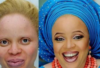 Cette maquilleuse fait des merveilles avec les albinos