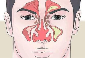 Comment faire pour dégager un nez bouché en 1 min