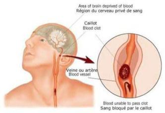 Accident vasculaire cardiaque: Le tueur de ces 30 dernière années