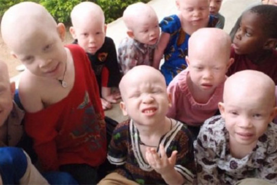 Malawi: les albinos persécutés