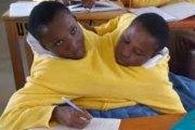 Tanzanie: Abandonnées par leur mère, des jumelles siamoises admises à l'université