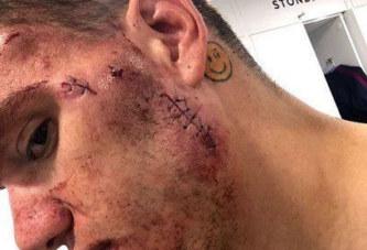 Arrêt sur image: Le visage d'Ederson, le gardien de Man City, après son contact avec Sadio Mané…
