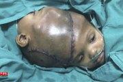 Santé - Inde: Des siamois reliés par la tête séparés