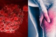 Le caillot de sang : comment reconnaitre ce tueur silencieux que les gens ignorent