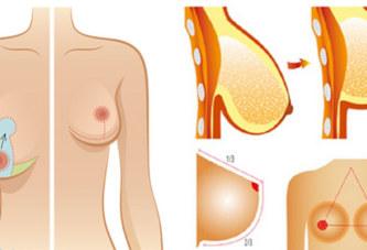 Affaissement des seins : Les causes
