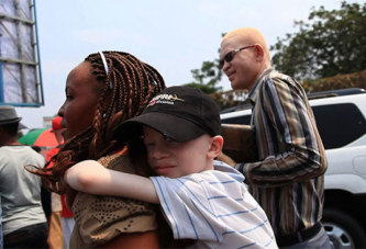 Mali: le meurtre d'une fillette albinos provoque un soulèvement populaire