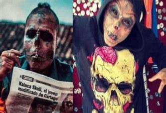 Colombie : Il se fait couper les oreilles et le nez pour une incroyable raison (photos)