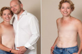 Cette maman a vaincu le cancer et pose fièrement pour montrer les cicatrices de sa mastectomie