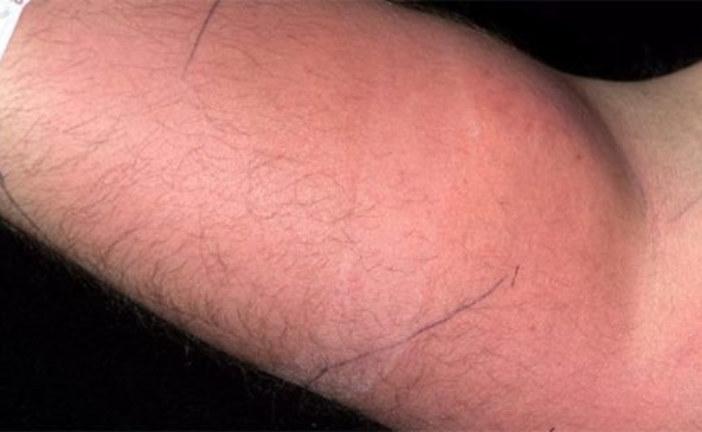 Un homme s'injecte du sperme pour guérir d'un mal qui le ronge!