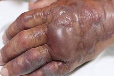 Âgé de 71 ans, cet homme doit se faire amputer la main après avoir mangé ceci