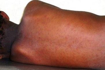 Les cas de rougeole dans le monde ont triplé depuis janvier, alerte l'OMS