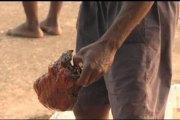 Bénin : Le trafic d'organes humains a le vent en poupe