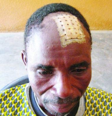 Zidouemba Gambila a reçu le plomb dans le crâne