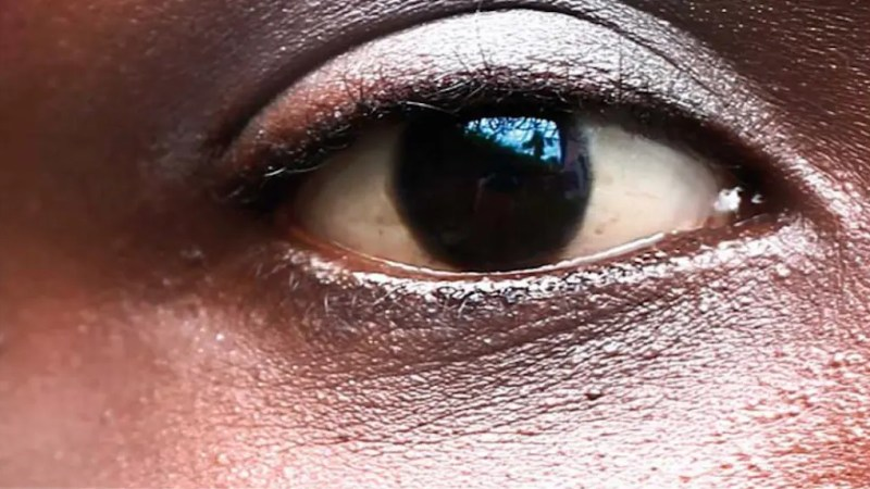 Certains patients atteints de conjonctivite sont testés positifs au covid