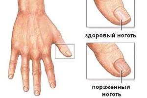 Почему воняют ногти на ногах и как их лечить