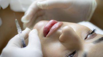 lip-filler-6485474_1920