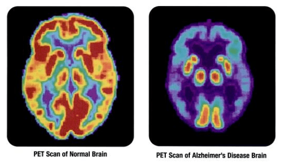 Researchers Discover Two, Rare Genes Associated with Alzheimer's Disease