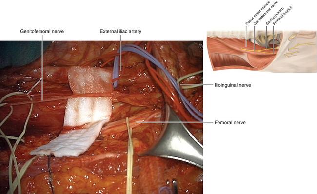 Ilioinguinal, Iliohypogastric, and Genitofemoral Nerves ...