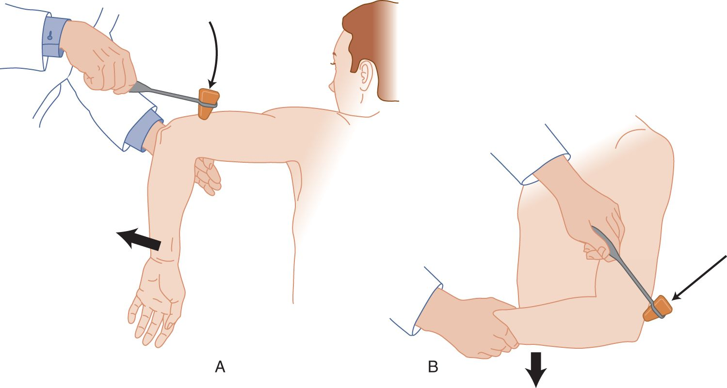 Examination Of The Somatic Motor System Excluding Cranial Nerves