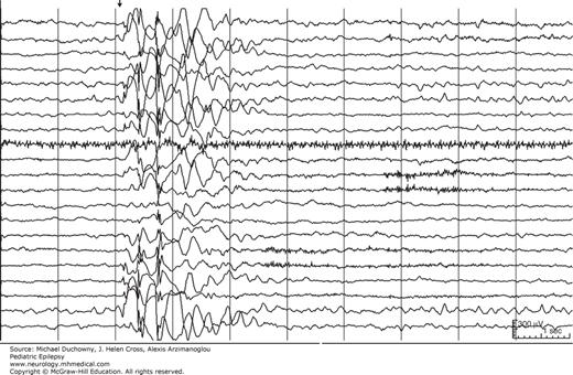 Benign Myoclonic Epilepsy in Infancy | Neupsy Key