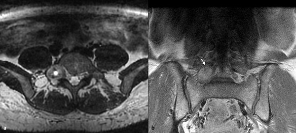 Schwannoma. Fifty-year-old female patient. (a) Axial CUBE T2-weighted image. An expansive oval-shaped mass is identified in the right foramen at L5–S1 level (asterisk). (b) Coronal T1-weighted image a