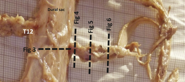 Human dural sac at the 12th thoracic vertebral level. The lines point to the cross-sections and their relationships to the numbers of the succeeding figures.