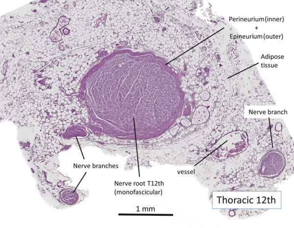 Transverse cross-section of the 12th thoracic nerve root located distal to the dorsal root ganglion, immediately after leaving the spinal cord toward the external orifice of the foramen.