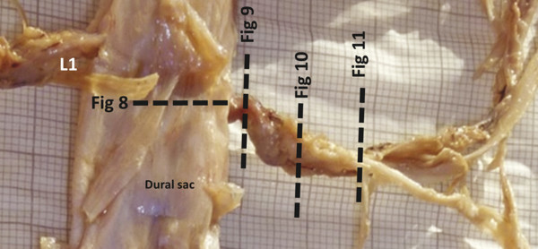 Human dural sac at the first lumbar vertebral level. Lines point toward the cross-sections indicating the relationship to the numbers of the succeeding figures.