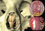 Chapter 2 Three-Dimensional Anatomy of the Skull Base: The Ventral Pathway