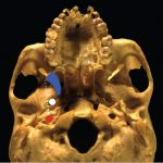 Chapter 26 Nasopharyngectomy