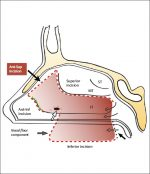 Chapter 36 Anterior and Posterior Pedicle Lateral Nasal Wall Flaps